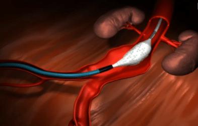 Endovascular Aortic Repair